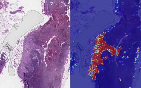 IA : Google détecte le cancer du sein métastatique avec une précision de 99%