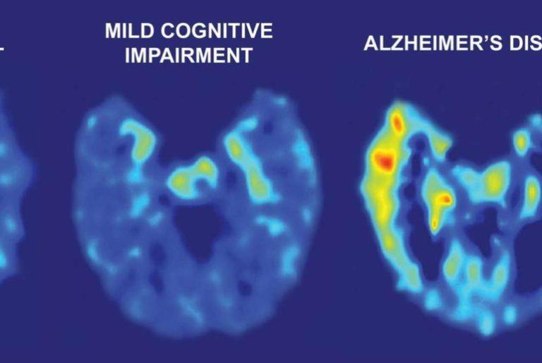 INTELLIGENCE ARTIFICIELLESCIENCE Une IA peut détecter Alzheimer 6 ans avant son diagnostic par l'Homme