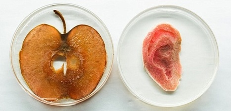 Biohacking : une oreille conçue à partir d'un morceau de pomme
