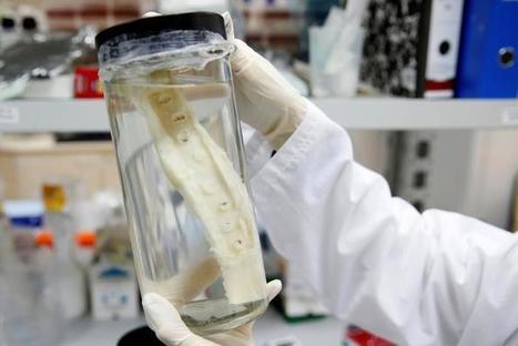 Des os cultivés en laboratoire, greffés pour la première fois