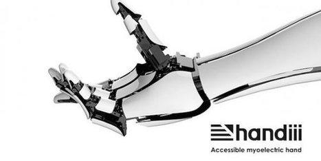 Handiii, une prothèse à bas coût intelligente et connectée