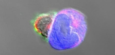 Immunothérapie anticancer : feu vert au 1er essai clinique utilisant CRISPR