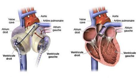 Munie du plus petit cœur artificiel du monde, elle reçoit (avec succès) une greffe