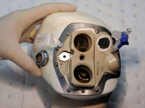 Première implantation à l'étranger du coeur artificiel Carmat