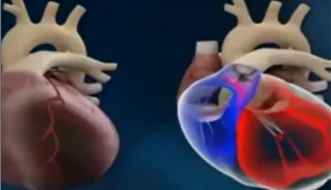 Un cœur artificiel implanté pour la première fois au monde