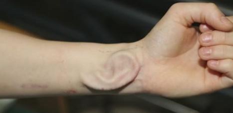 VIDEO. Elle se fait greffer une nouvelle oreille… cultivée dans son bras