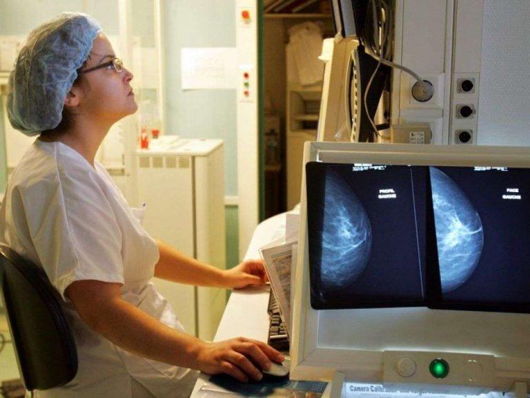 Une IA de Google surpasse les radiologues pour détecter le cancer du sein