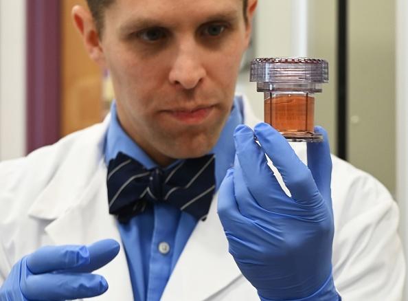 Pays de Galles: une cellule «universelle» capable de s'attaquer à tous les cancers a été découverte