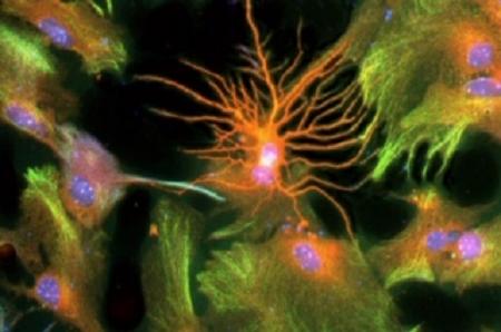 Régénérer le cerveau en produisant de nouveaux neurones
