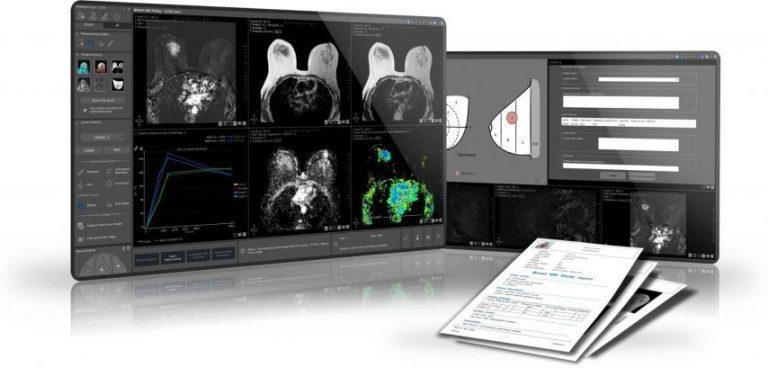 Montpellier. Intrasense : un nouvel outil pour combattre la pandémie du Covid-19