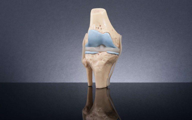Ce gel remplace le cartilage des genoux