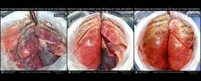 Des poumons humains endommagés peuvent être soignés en les attachant à des cochons
