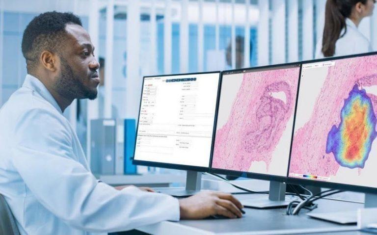 L'intelligence artificielle bientôt utilisée pour dépister le cancer, une première en France