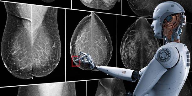 Therapixel lève 5 millions d'euros pour mieux détecter le cancer du sein grâce à l'IA